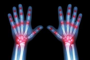 Best Golf Gloves for Arthritis