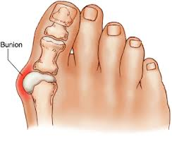 Explaining how the condition of bunions affects choice for the Best Golf Shoes for Bunions